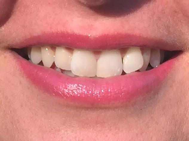 Custom Fuschia Tattooed Lips