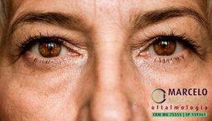 4 exames de olhos que você precisa fazer sempre