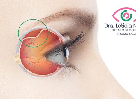Você já ouviu falar em descolamento de retina?