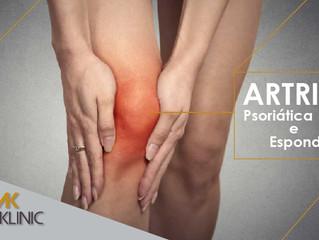 Você tem artrite?  Participe dessa pesquisa