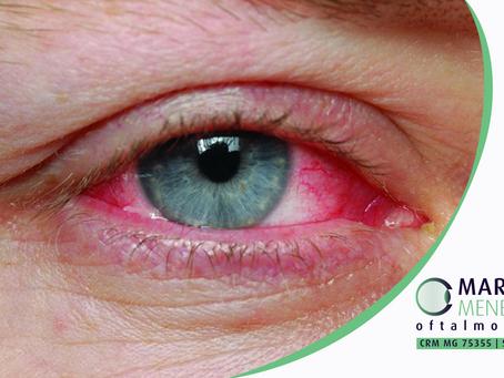 Descolamento de Retina: quais os passos para tratar?