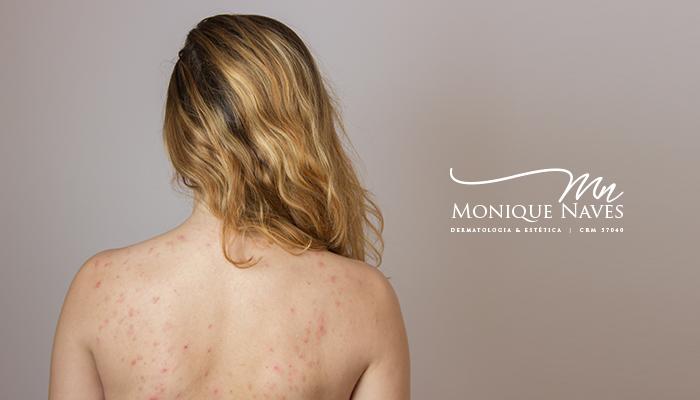 Rotina de cuidados para quem tem acne nas costas