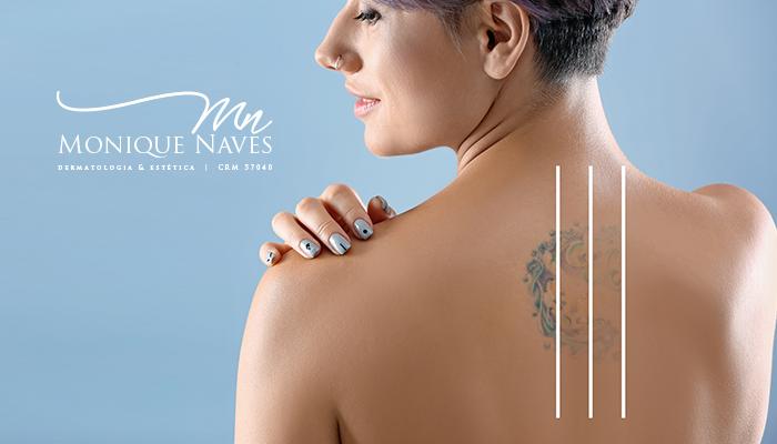 Remover uma tatuagem pode aumentar os riscos de câncer de pele?