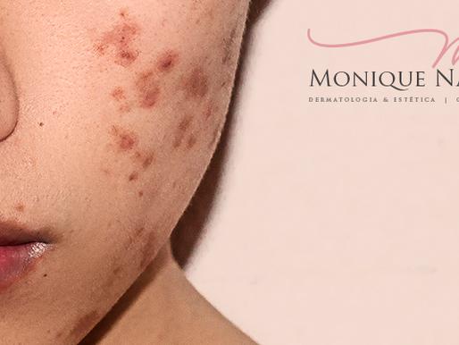 Elas vem no verão: sardas, melanoses, acne. O que fazer?