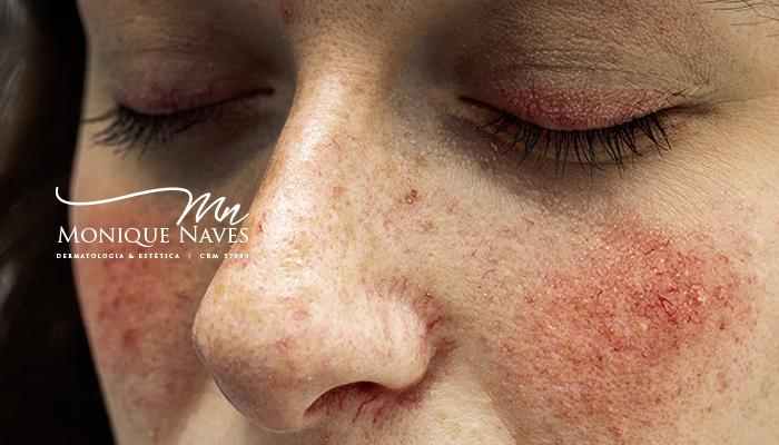 O lúpus e a sua pele: qual é o papel do dermatologista?