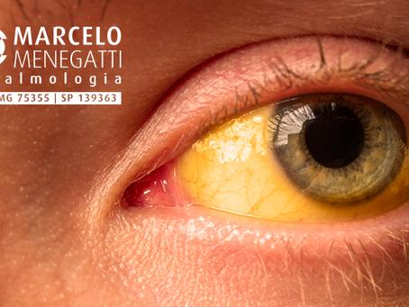 Hepatite C afeta mais de 200 mil pessoas no Brasil e pode causar problemas nos olhos.