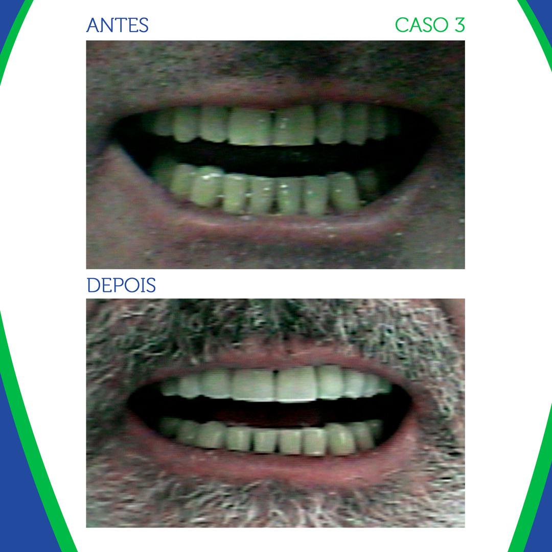 CASO-3_01.jpg