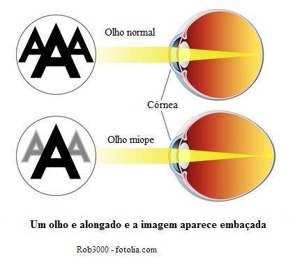 Miopia - comparação entre um olho normal e um alongado