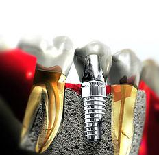 dental_implants.jpg
