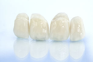 Metal free ceramic dental crowns.jpg