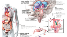 The 6 Stages of Parkinson's and Lewy Body Disease