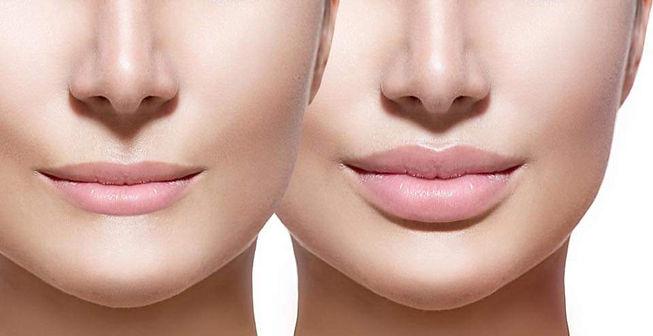 no needle lip filler main pic.jpg