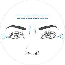 Botox (1).jpg