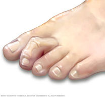 Clawed Toes Podiatry Mississauga