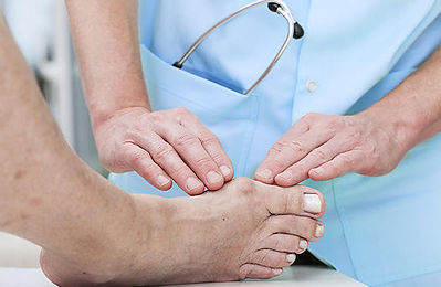 Bunion Podiatry Treatment Mississauga