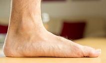 Flat Feet Podiatry Treatment Mississauga