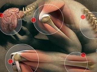 Fibromyalgie : Expérience de Cryothérapie corps entier