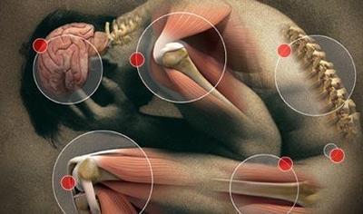 fibromyalgie cryothérapie