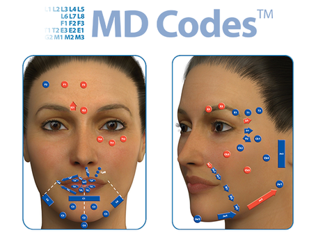 MD Codes: técnica que potencializa os resultados do preenchimento facial com ácido hialurônico.