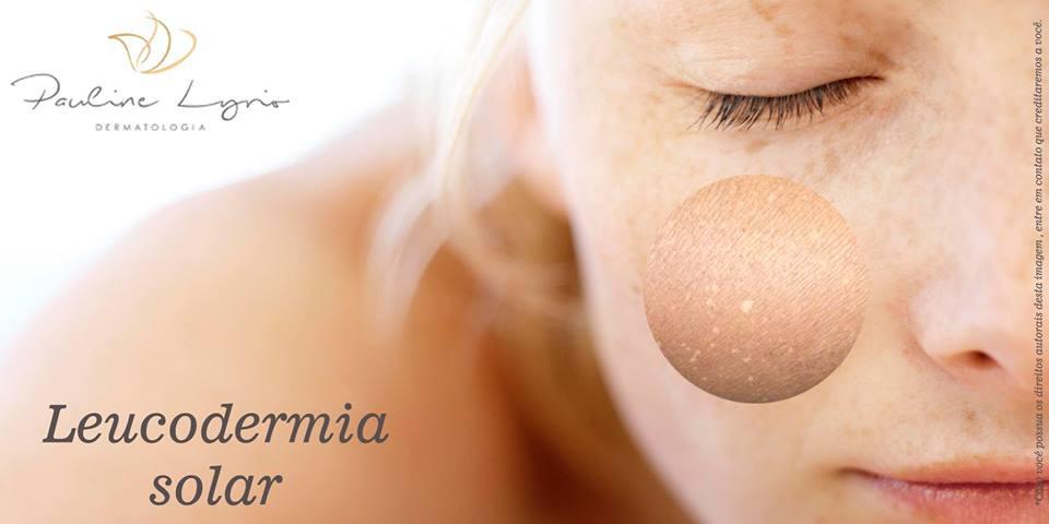 manchas brancas na pele - leucodermia solar