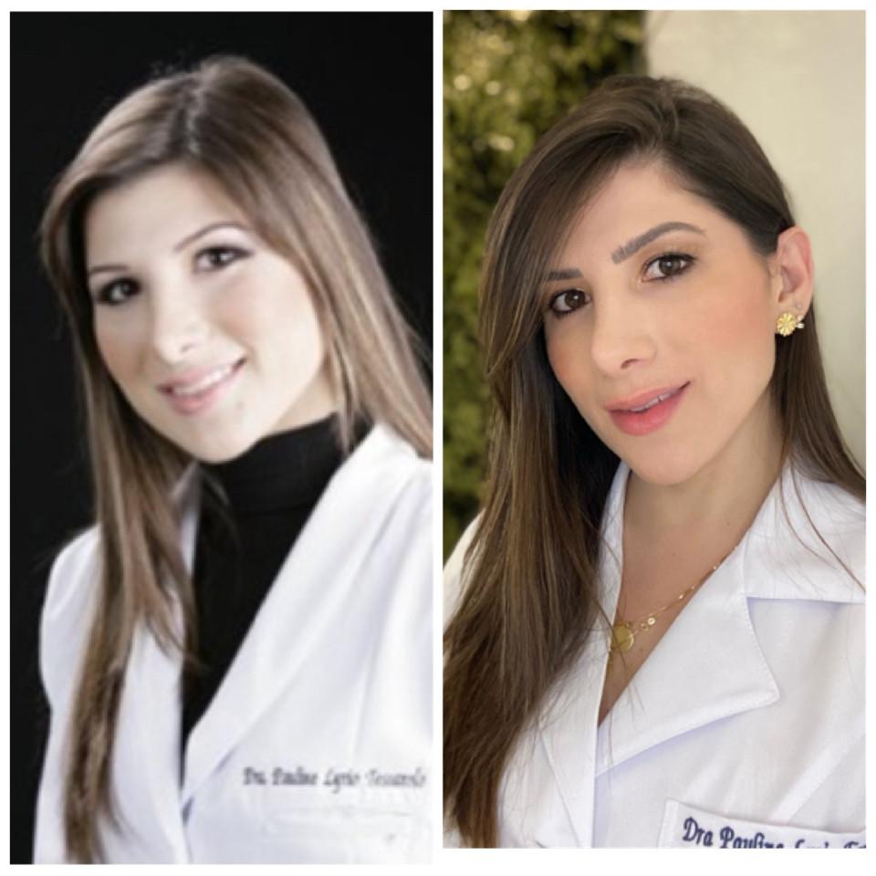 antes e depois rejuvenescimento facial