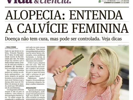 No jornal A Gazeta, Dra. Pauline Lyrio falou sobre alopecia androgenética