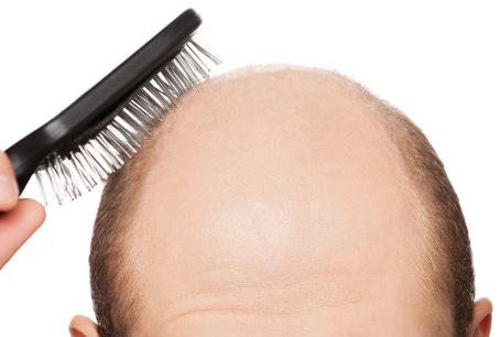 MMP - Microinfusão de Medicamentos na Pele: um tratamento inovador para queda de cabelo.