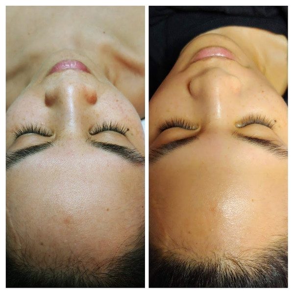 European Facial Before and After