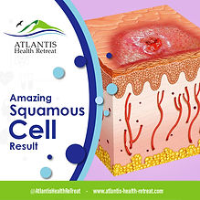 amazing-squamous-cell-results_orig.jpg