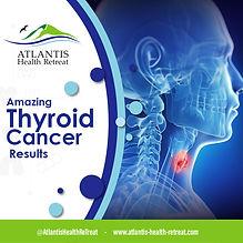 amazing-thyroid-cancer-results_orig.jpg