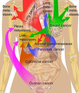 cancer-matastatic_orig.jpg