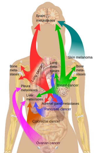 amazing-metastatic-cancer-results_1.png