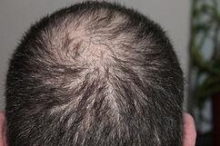 Infoltimento capelli uomo donna