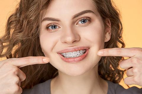what-are-ceramic-braces.jpg
