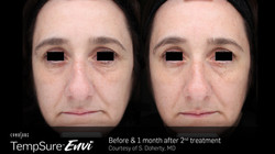 TempSure-Envi-Before-and-After-Image_26.