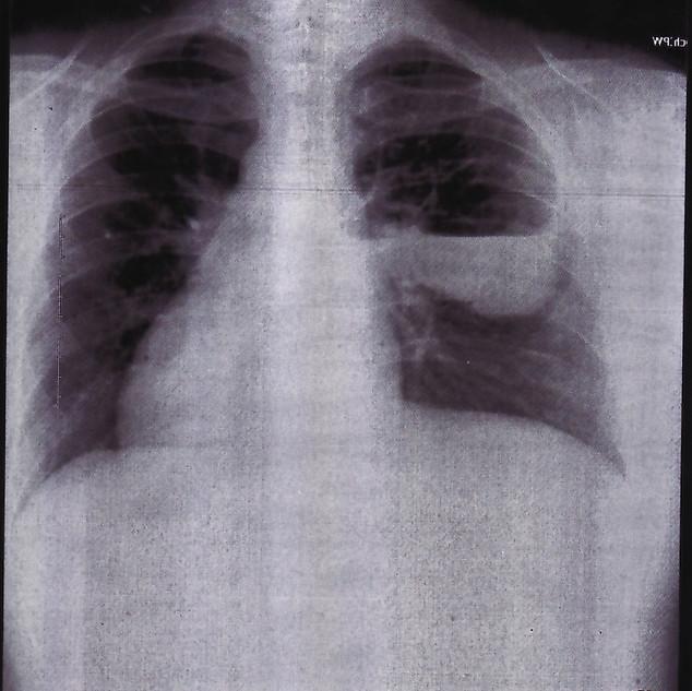 chest art .jpg