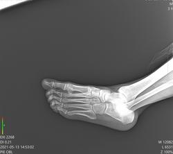 radiografias a domicilio