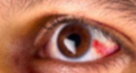 rednesseye.jpg