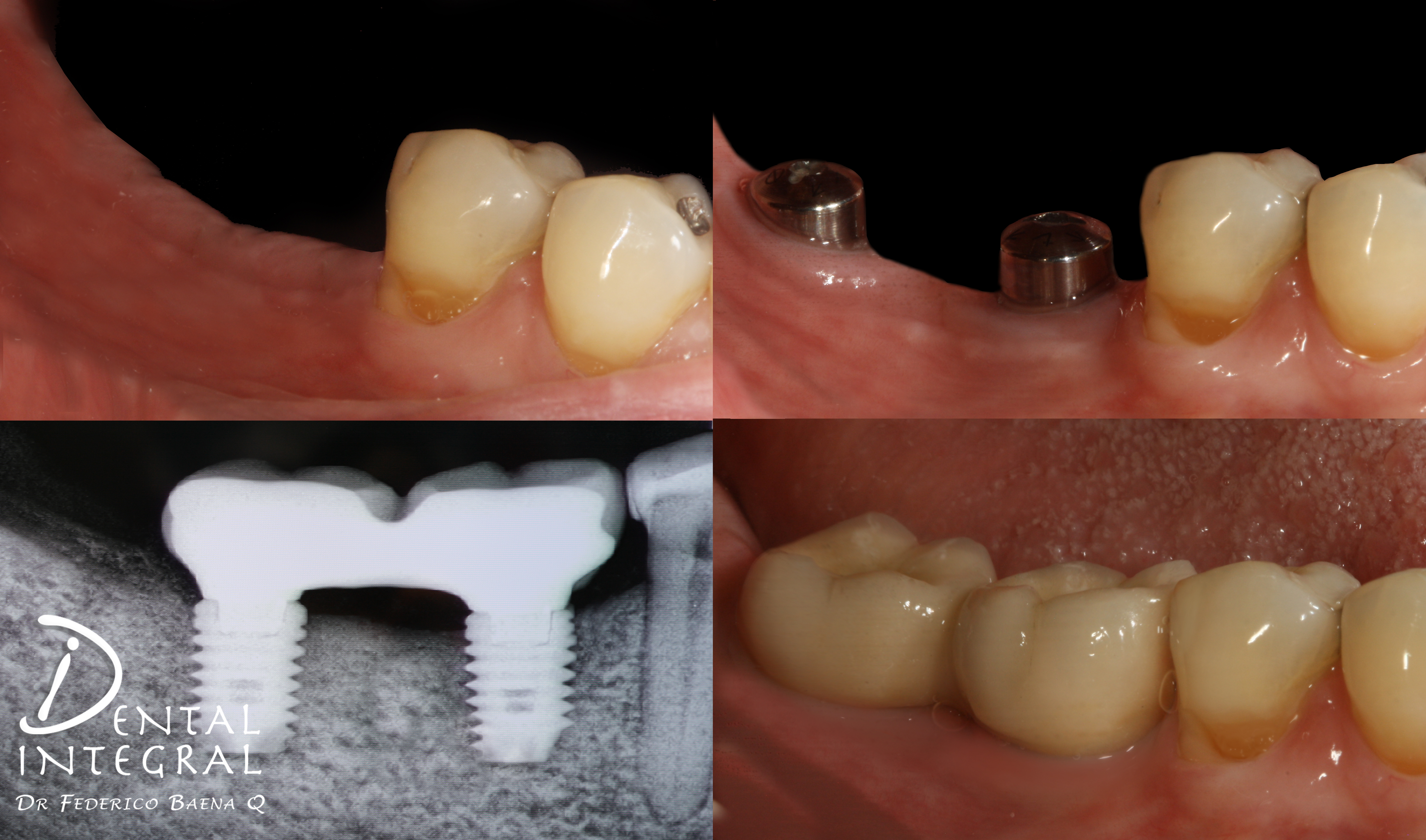 Implantes dentales posteriores