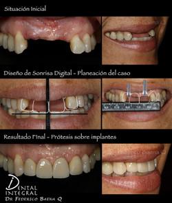 Implante Dental Esteticos Queretaro