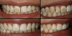 Dentista en queretaro resinas frontales