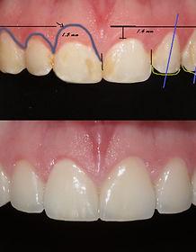 Carillas Coronas Dentales Esteticas Queretaro
