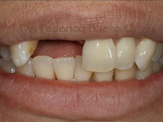 Implantes Dentales vs Puente Dental ¿Cuál me conviene más y por qué?