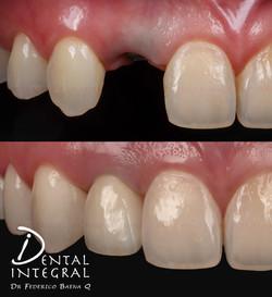 Implante dental estético
