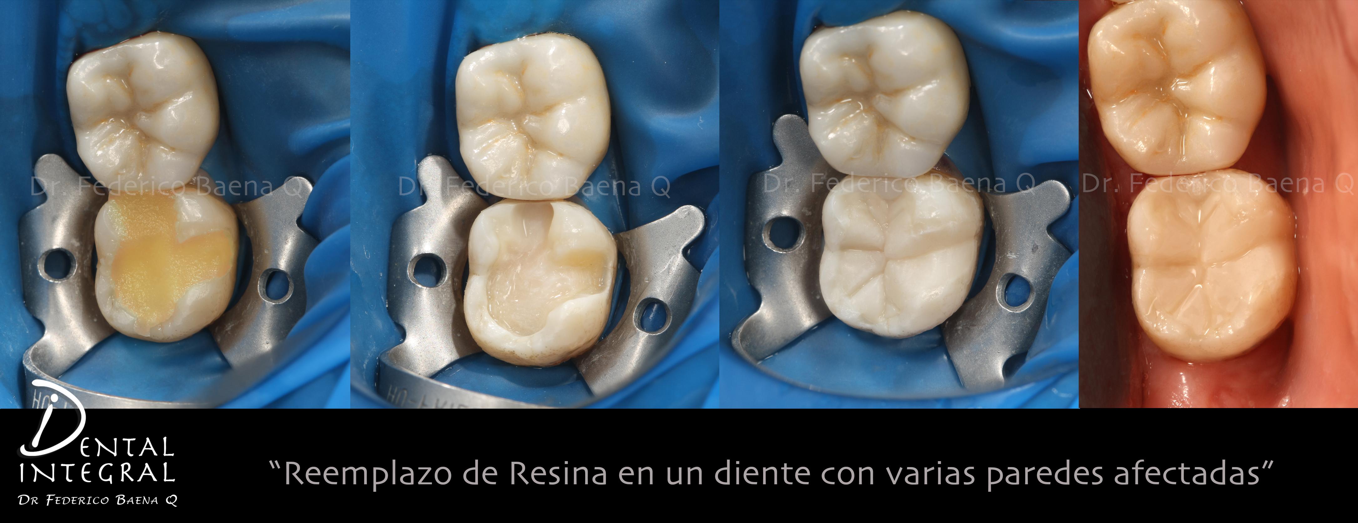 Restauración Directa con Cerómero