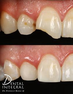 Resina por fractura de diente