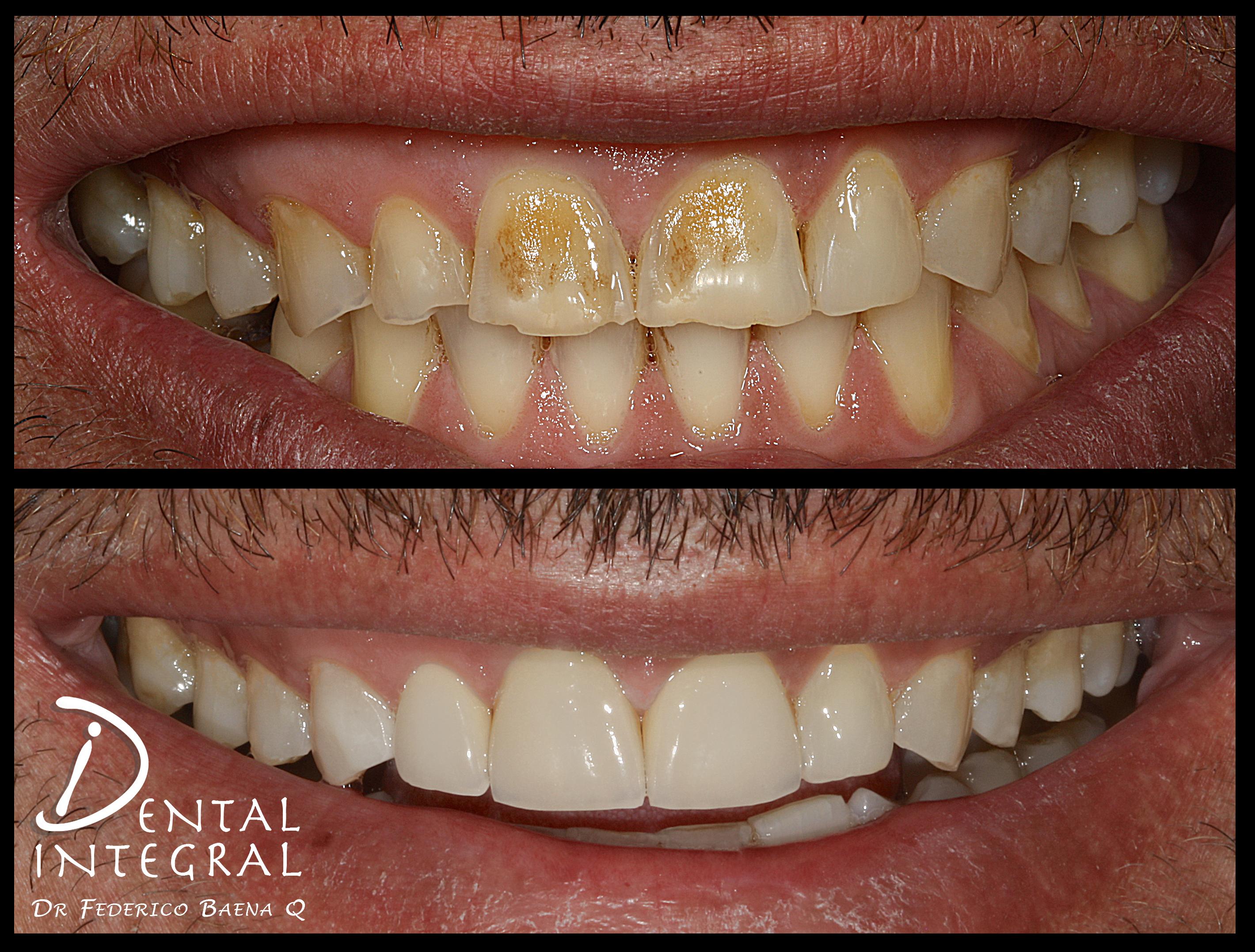 Carillas Dentales paciente fumador