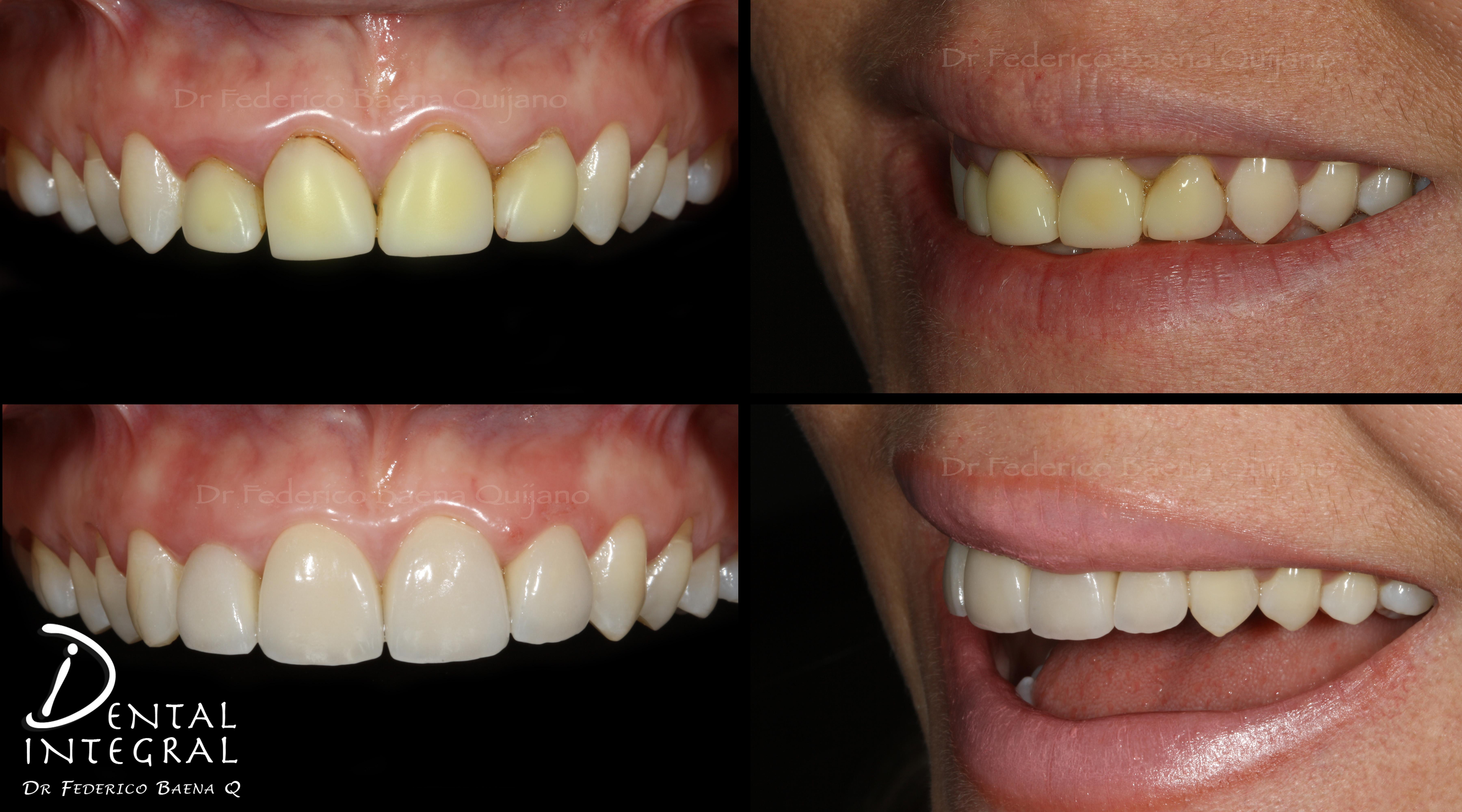 dentista queretaro dr baena Quijano pre post EA