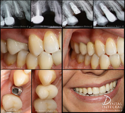 Implante dental Queretaro