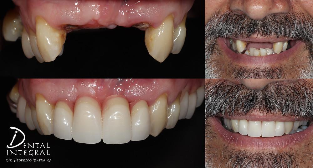 Removibles Dentales en Querétaro